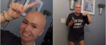 A teenage with alopecia made a TikTok that displays the advantages of dating somebody without hair